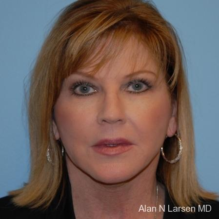 Plastic Surgery | Buckhead Plastic Surgery - Northeast Atlanta