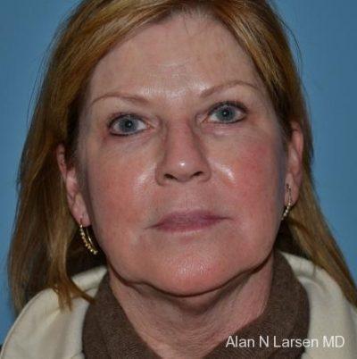 Plastic Surgery | Buckhead Plastic Surgery - Northeast Atlanta