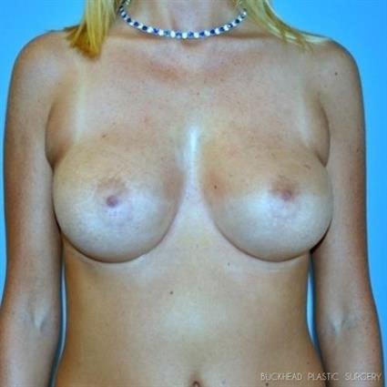 Breast Augmentation Revision & Strattice | Buckhead Plastic Surgery - Northeast Atlanta