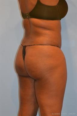 Brazilian Butt Lift | Buckhead Plastic Surgery - Northeast Atlanta