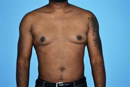 Liposuction | Buckhead Plastic Surgery - Northeast Atlanta