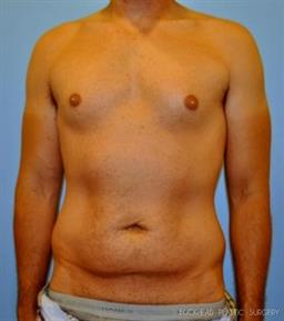 Abdominoplasty   Buckhead Plastic Surgery - Northeast Atlanta