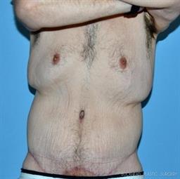 Body Lift   Buckhead Plastic Surgery - Northeast Atlanta
