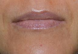 Lip Enhancement | Buckhead Plastic Surgery - Northeast Atlanta