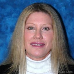 Brow Lift | Buckhead Plastic Surgery - Northeast Atlanta
