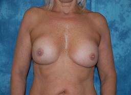 Breast Augmentation Revision | Buckhead Plastic Surgery - Northeast Atlanta