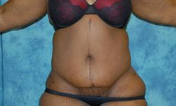Abdominoplasty | Buckhead Plastic Surgery - Northeast Atlanta