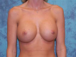 Breast Augmentation | Buckhead Plastic Surgery - Northeast Atlanta