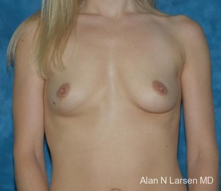 Breast Augmentation | Buckhead Plastic Surgery - Northeast Atlanta