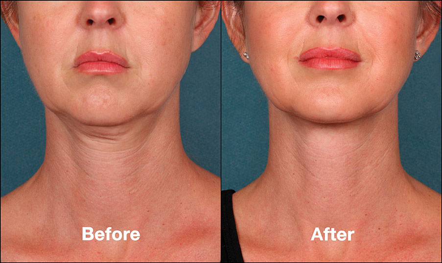 Liquid Lift | Buckhead Plastic Surgery - Northeast Atlanta