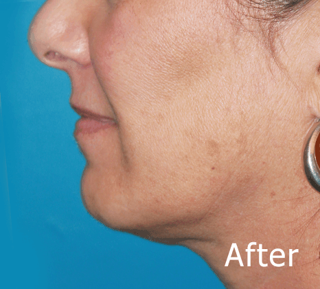 Chin Augmentation | Buckhead Plastic Surgery In Atlanta, GA