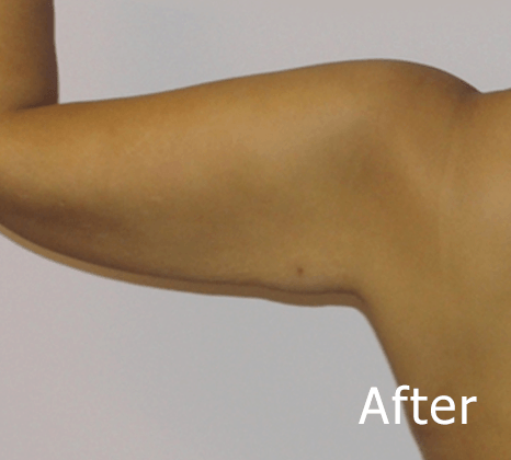 Arm Lift | Buckhead Plastic Surgery In Atlanta, GA