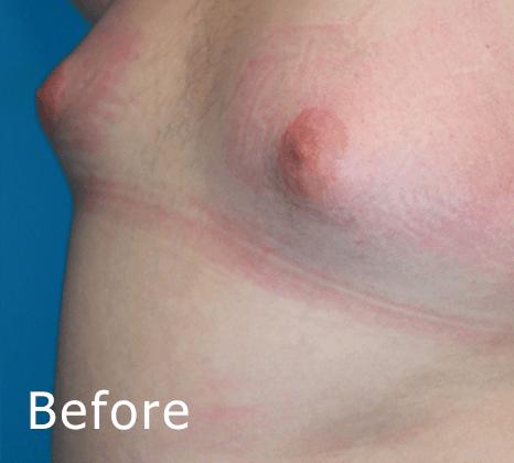 Breast Reduction   Buckhead Plastic Surgery In Atlanta, GA