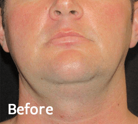 Face Tite | Buckhead Plastic Surgery In Atlanta, GA