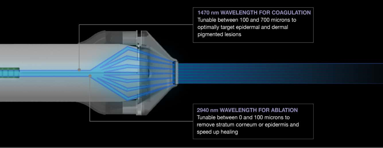 halo fractal laser