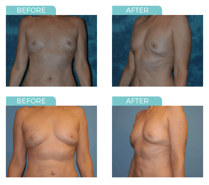 The Pros And Cons Of Fat Transfer Breast Augmentation Bps