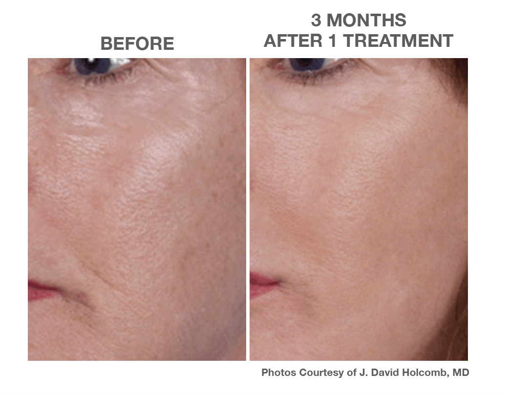 3 Months after 1 Treatments of Nano Laser Peel Skin Resurfacing