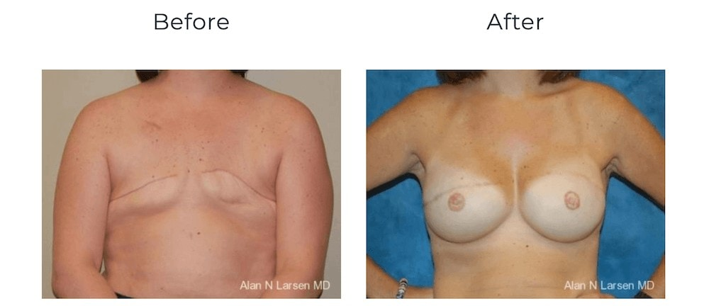 breast reconstruction breast cancer awareness