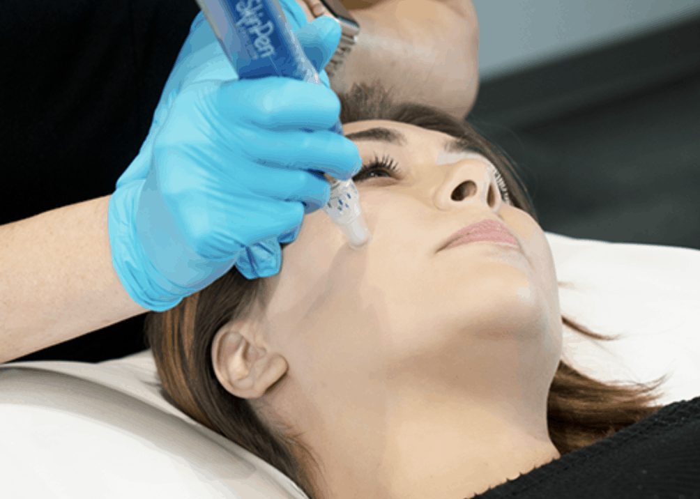 microneedling-at-lux-med-spa at buckhead plastic surgery