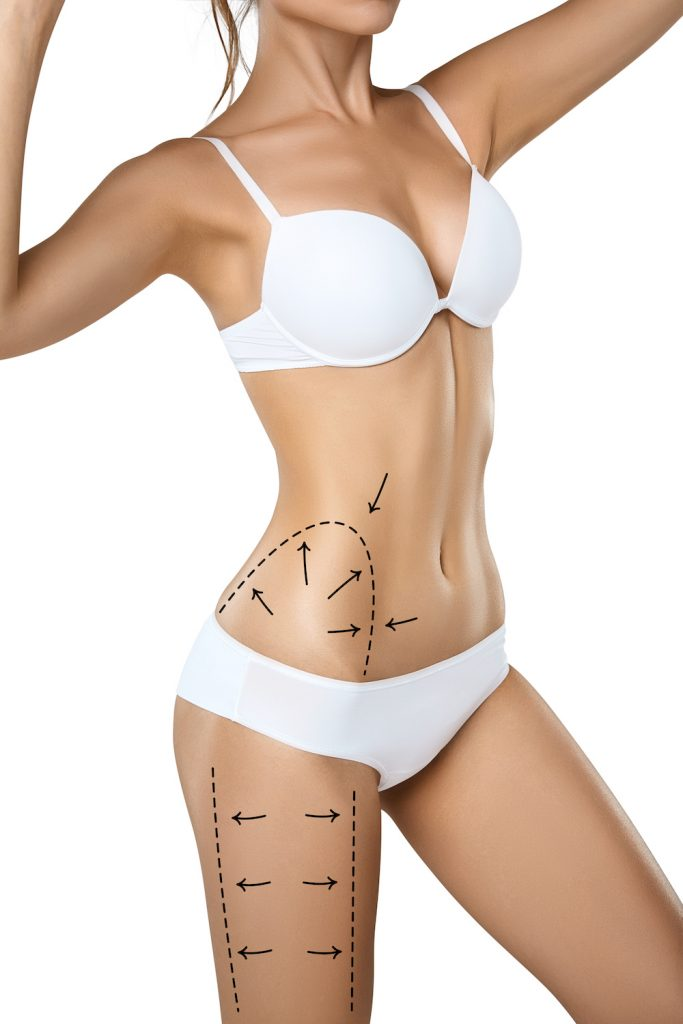 liposuction, techniques, process and recovery at buckhead plastic surgery