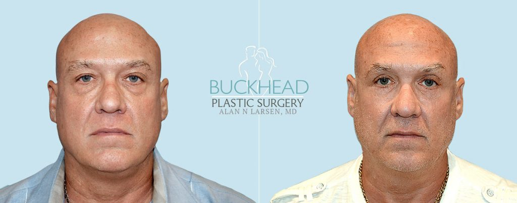 Buckhead Plastic Surgery, explains why patients want an eyelid lift surgery aka a blepharoplasty, to help refresh tired-looking eyes.