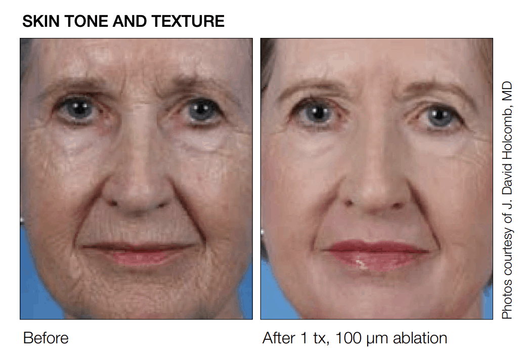 SCITON before and after results for micro laser contour peel at lux med spa atlanta DEEP RESURFACING
