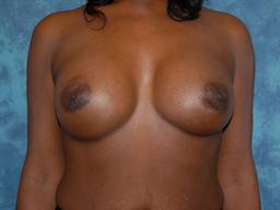 Breast Augmentation | Buckhead Plastic Surgery | Board-Certified Plastic Surgeon in Atlanta GA