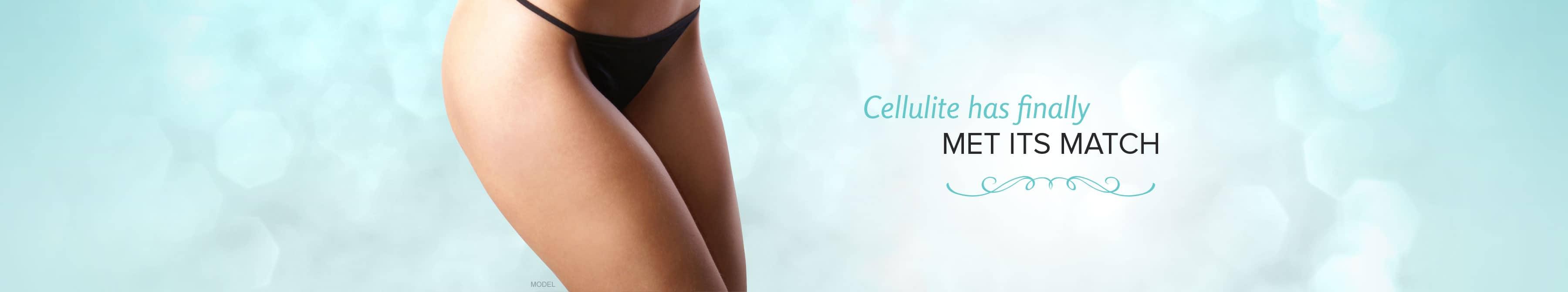 Cellulaze™ in Atlanta   Buckhead Plastic Surgery   Cellulite