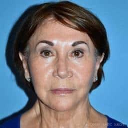 Face Lift & Neck Lift in Atlanta | Buckhead Plastic Surgery