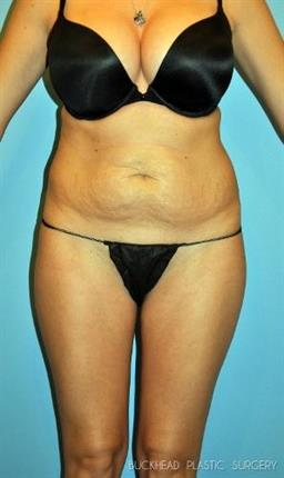 Tummy Tuck | Buckhead Plastic Surgery | Board-Certified Plastic Surgeon in Atlanta GA